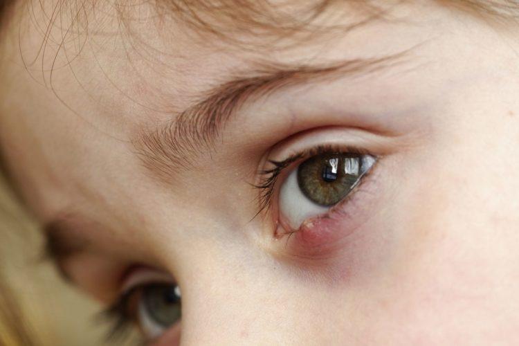 piccole patologie delle palpebre